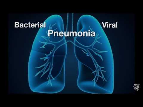 Mayo Clinic Minute: Is pneumonia bacterial or viral?