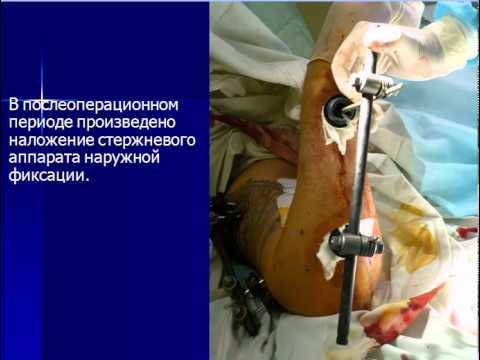 травматологи переломы нижних конечностей - YouTube