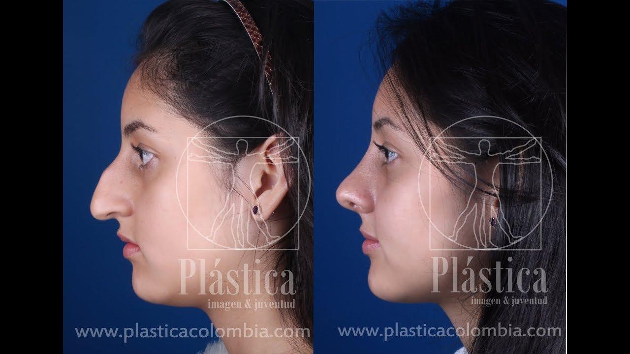 rinoplastia nariz ancha bogota