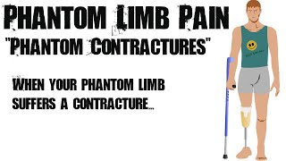 Phantom Limb Pain and The Mirror Box #2