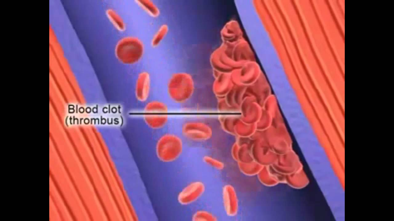 Formation of Deep Vein Thrombosis