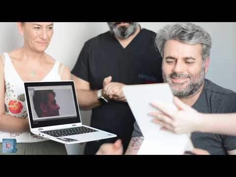 La Réaction Et L'expérience De M. Erdal Après La Chirurgie (Rhinoplastie - Double Menton - Oreille)