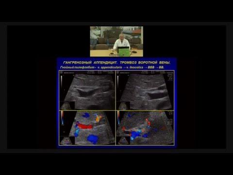 УЗИ диагностика аппендицита и абдоминальной грыжи
