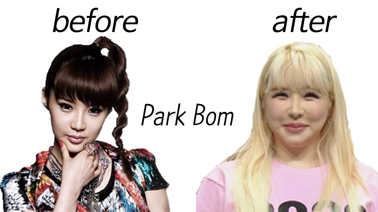 Park Bom Before And After Youtube