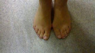 болит нога возле косточки \ вальгус про купить в челябинске(То, что в обиходе мы называем косточкой на большом пальце ноги(подагра лечение), на научном языке звучит..., 2014-07-27T11:52:29.000Z)