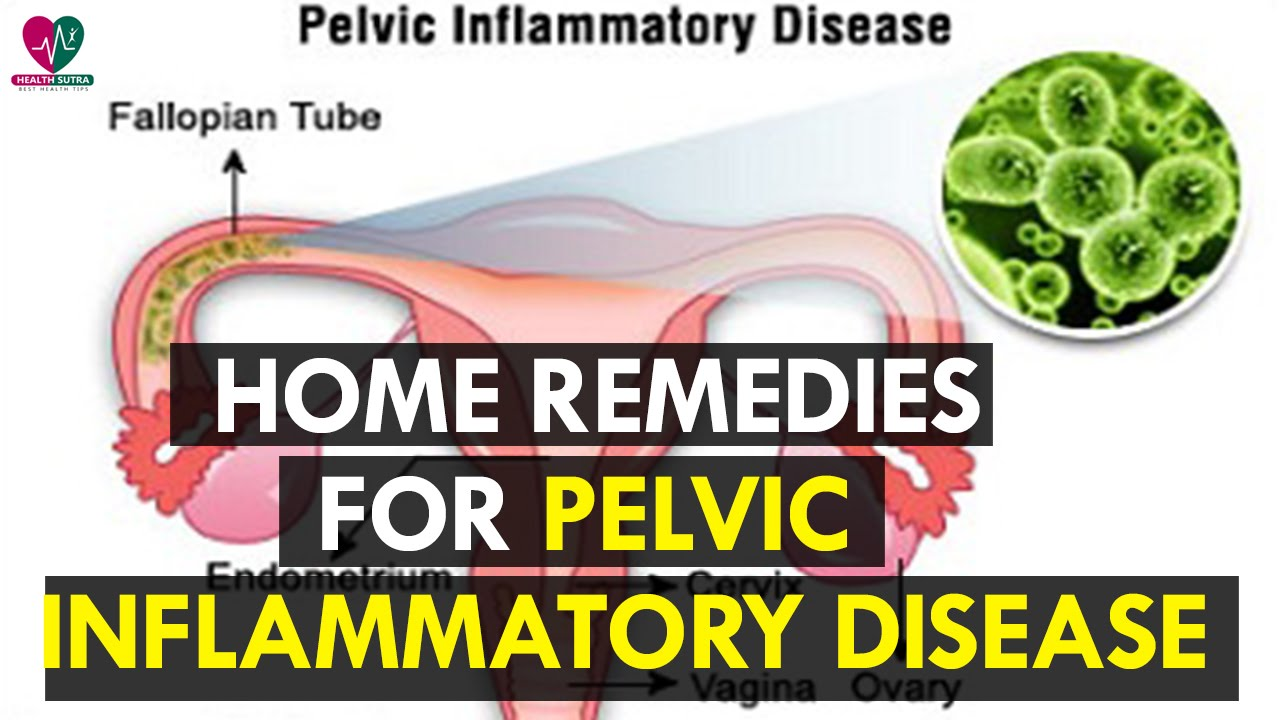 Remedies for pid natural Natural Remedies