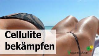 Cellulitis behandeln Cellulite Ursachen Cellulites verhindern Orangenhaut