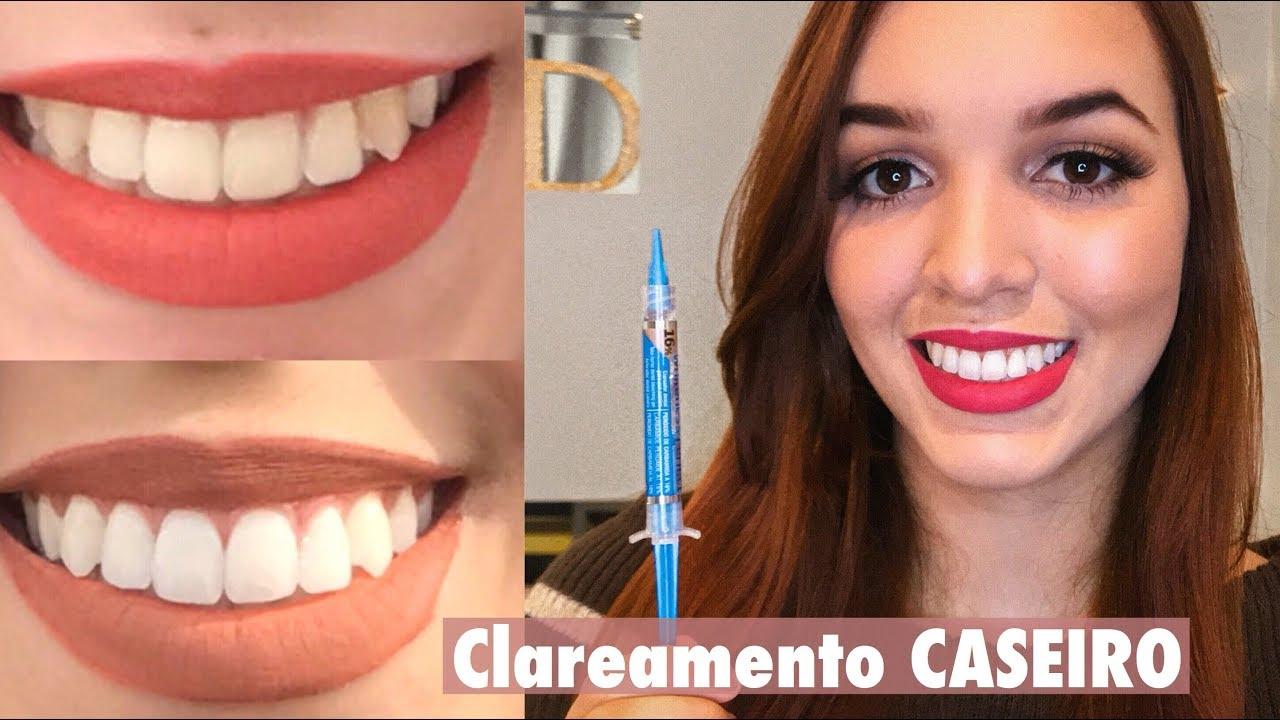 Clareamento Dental Caseiro Whiteness Perfect Debora Freitas