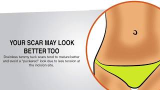 Why a Drain-Free Tummy Tuck May Be Best for Your Belly