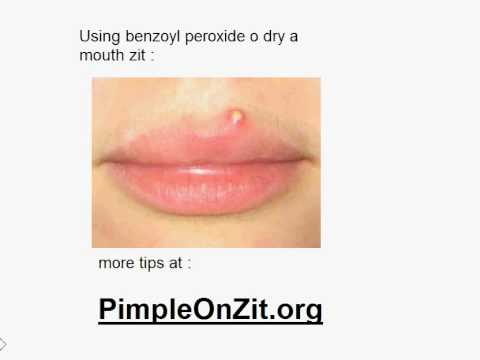 Pimple On Lip Youtube