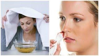 Hoe pak je neusbloedingen aan?