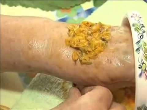 Лечение ревматоидного артрита народными средствами - YouTube