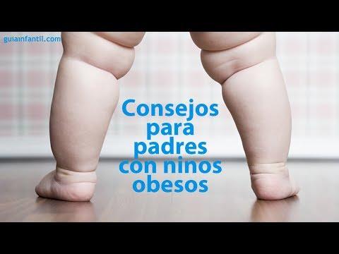 La Obesidad Infantil