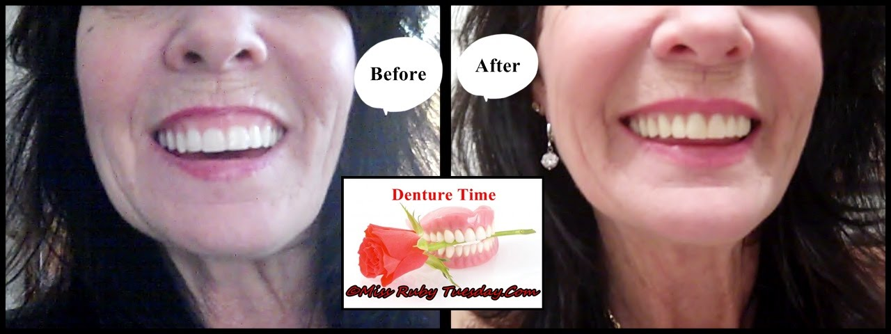 Miss Ruby Tuesday Denture Time My New Dentures Youtube