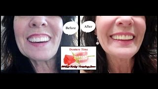 Miss Ruby Tuesday- Denture Time- My New Dentures!
