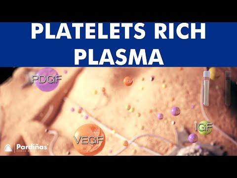 Platelet Rich Plasma - PRP injection ©