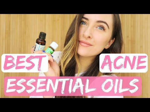 my-favourite-essential-oils-for-acneclear-skin