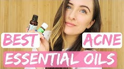 hqdefault - Acne Remedies Essential Oils