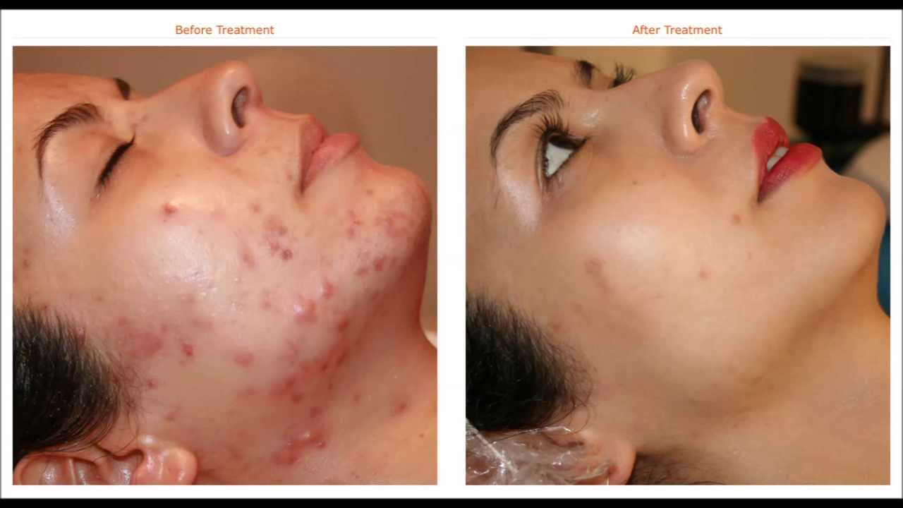 Best Acne Treatment Spa