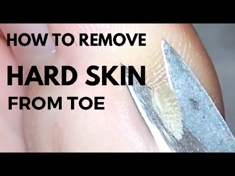 How To Remove Hard Skin From Toe