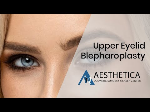 Upper Eyelid Blepharoplasty Removal of Fat Pad - Awake Surgery - Phillip Chang MD www.GoToBeauty.co