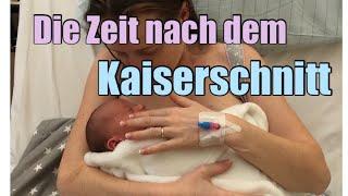 Zeit NACH dem Kaiserschnitt / Geburtsbericht II