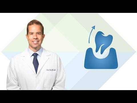 Dental Extractions in South Jordan UT: Dr. Price | Utah Facial & Oral Surgery