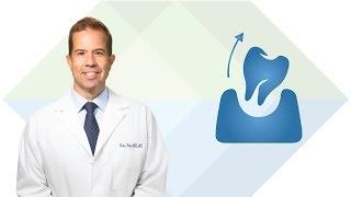 Dental Extractions in South Jordan UT: Dr. Price | Utah Facial & Oral Surgery