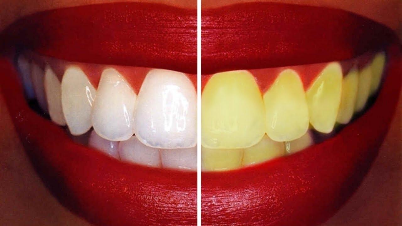 2 Dakikada EVDE DİŞ BEYAZLATMA - Sarı Dişler Nasıl Beyazlar? EN ETKİLİ YÖNTEM