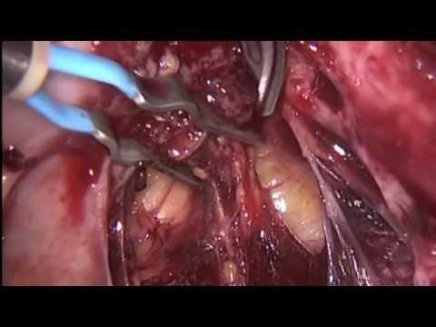 Эндометриоз 2. Первая часть.