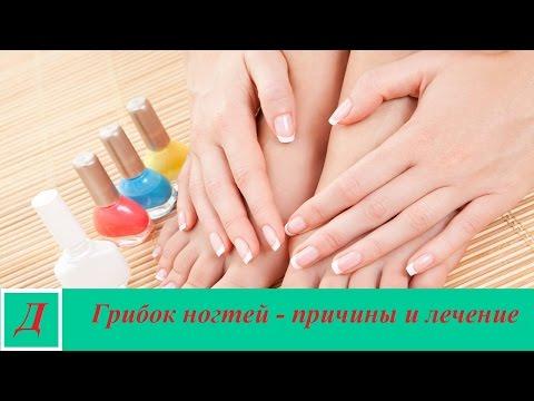 Грибок ногтей - причины, симптомы, лечение