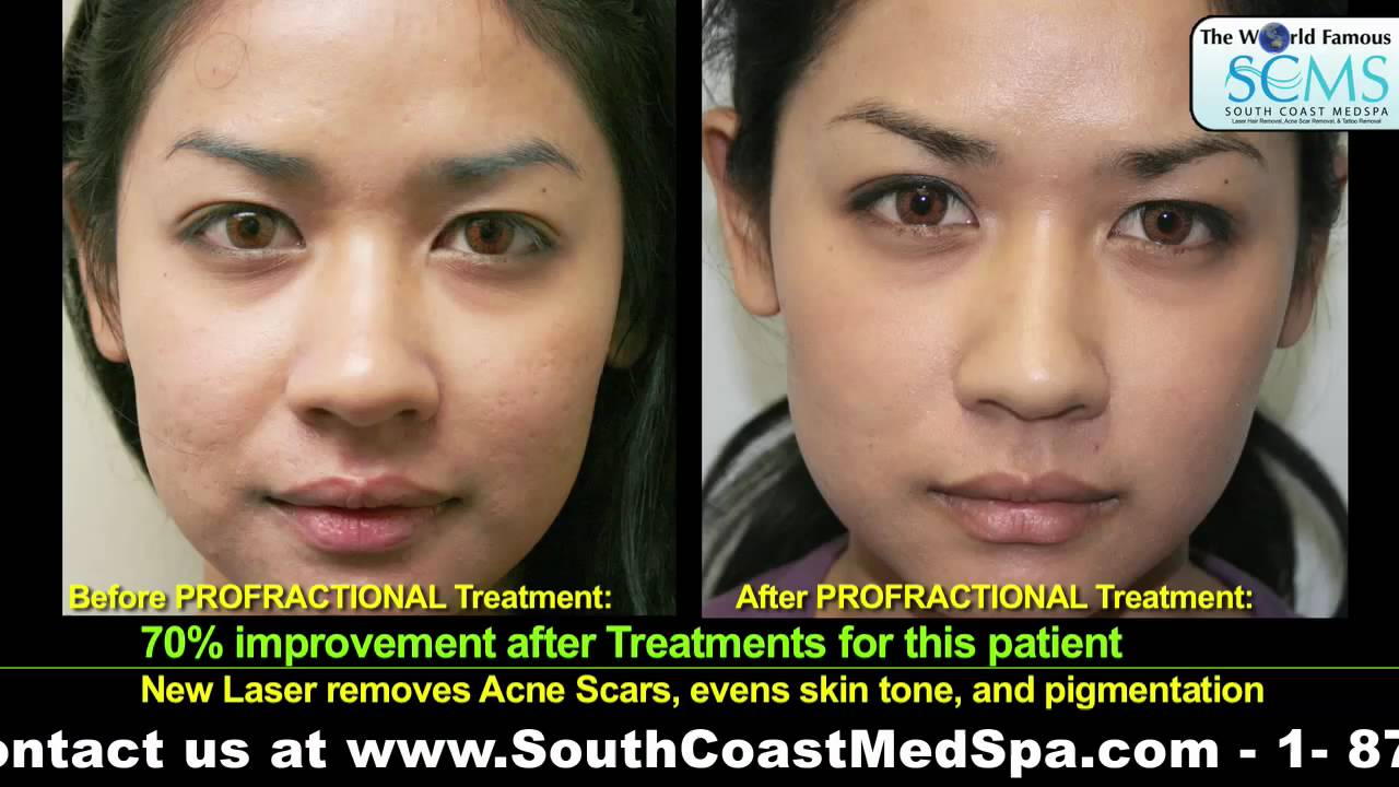 Laser Skin Resurfacing Before After La San Diego
