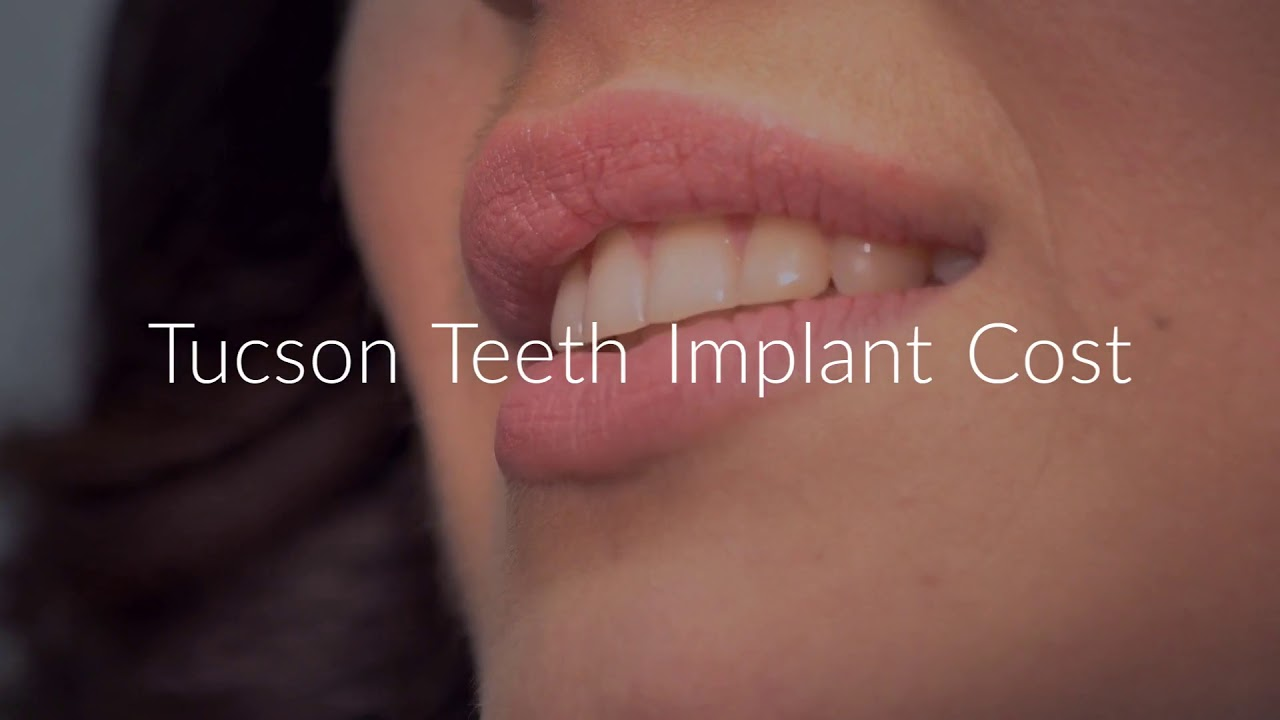Saeid Badie, DDS : Teeth Implant Cost in Tucson