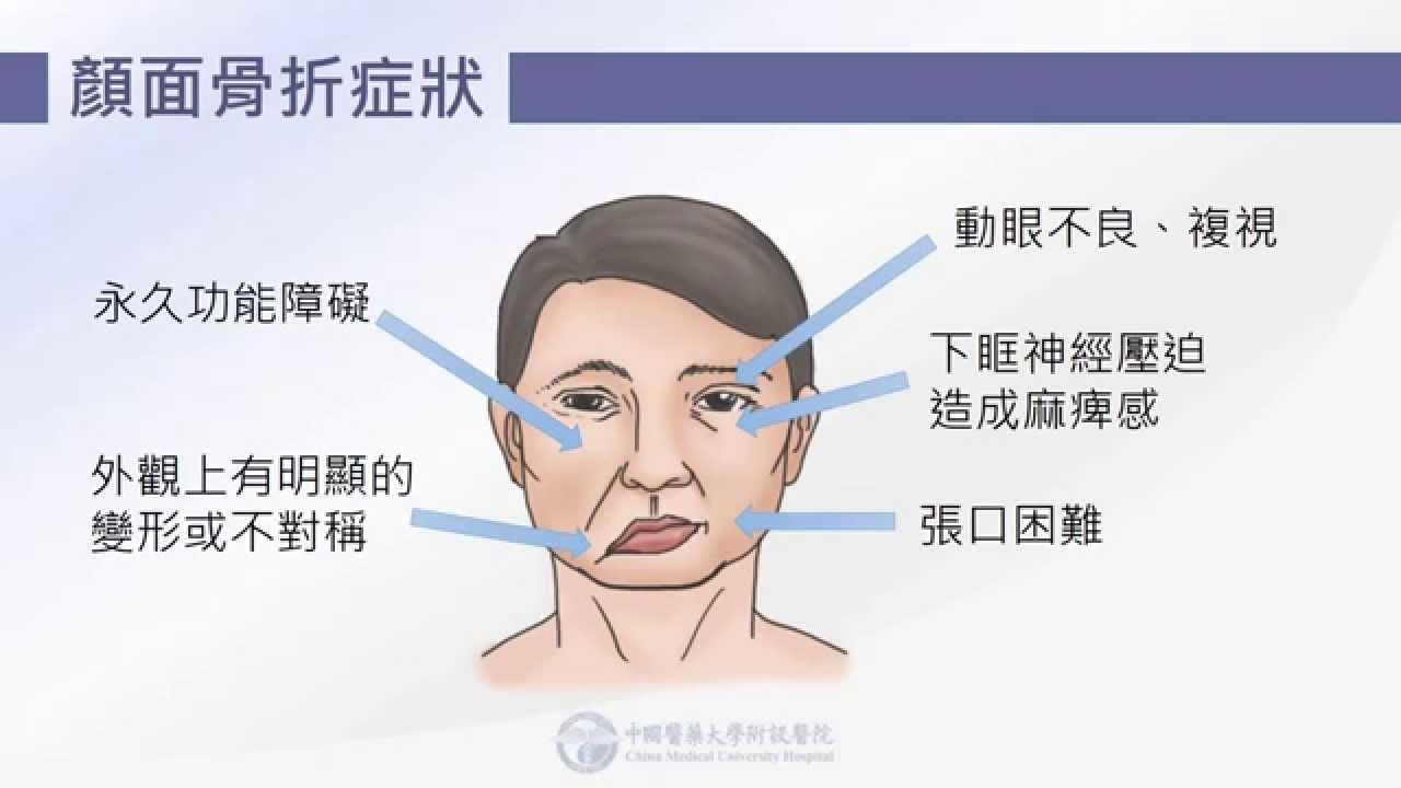 眼窩 底 骨折 手術