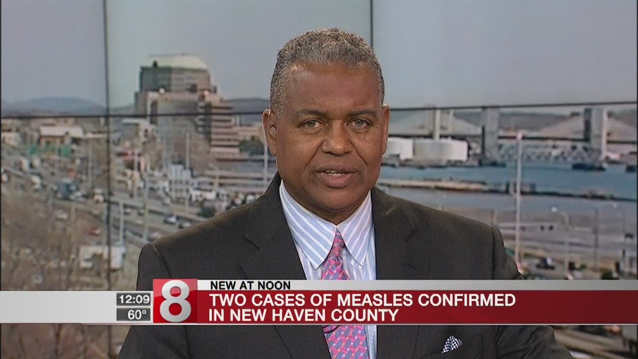 dph 2 confirmed cases of measles in new haven county