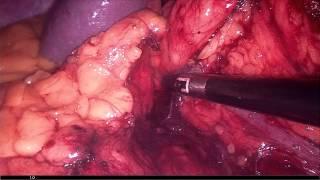 Laparoscopic left radical nephrectomy