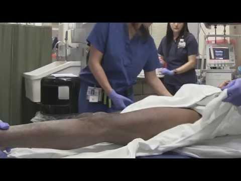 Hip Dislocation Emergency