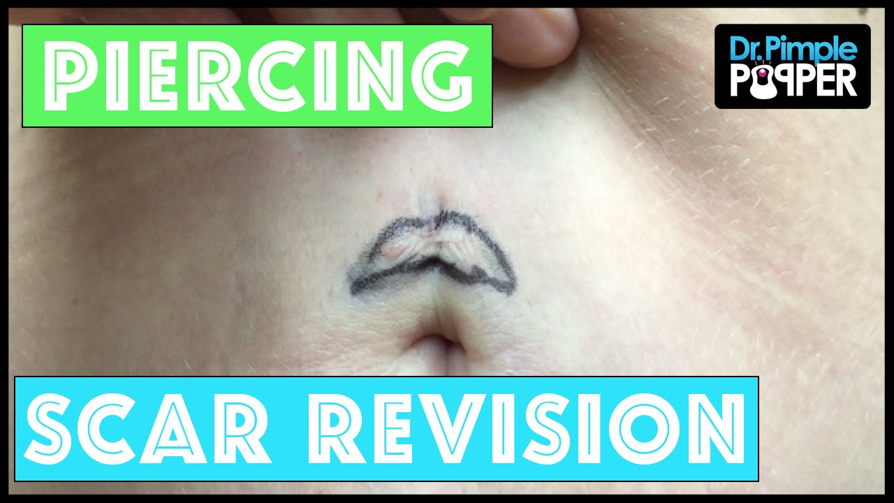 scar revision after a bad belly button piercing youtube