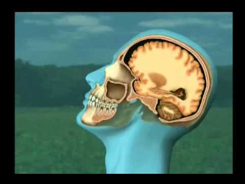 Medical Imaging – Brain Injury from Collision Impact
