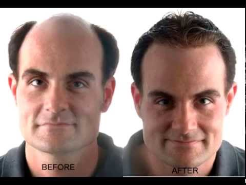 Hair Loss Protocol 101 – Does It Really Work?