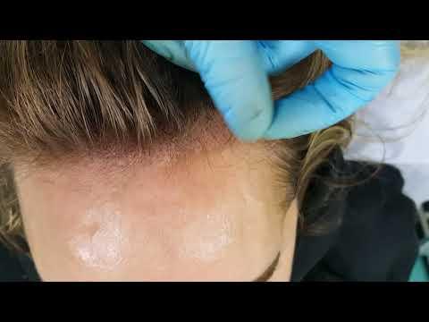 Female Hairline Scalp Micropigmentation Density by El Truchan @ Perfect Definition