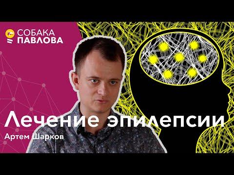 Лечение эпилепсии - Артем Шарков // функциональная хирургия, стимулятор блуждающего нерва, DBS, VNS