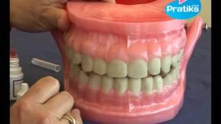 Prévenir ou guérir - Comment éliminer la plaque dentaire ?