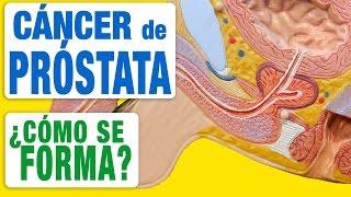 Cáncer de Próstata - ¿Cómo se Forma?