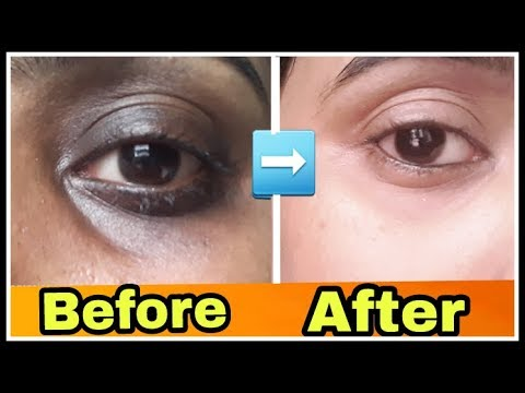 how to remove dark circles permanently | remove dark ...