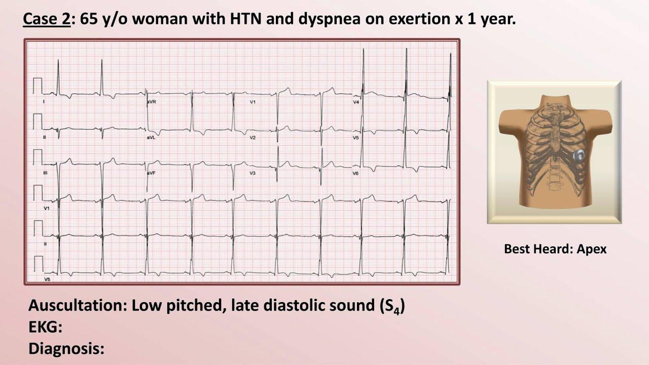 EKG and Heart Murmur Review - Part 1