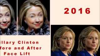 BREAKING NEWS Hillary Clinton Face Before and After Face Lift #205