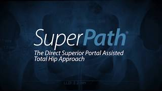 SuperPath Hip Replacement Length of Hospital Stay