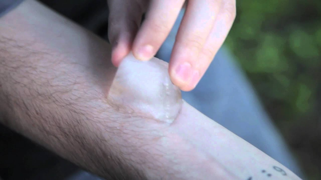 Doctors warn parents about dangerous 'salt and ice challenge