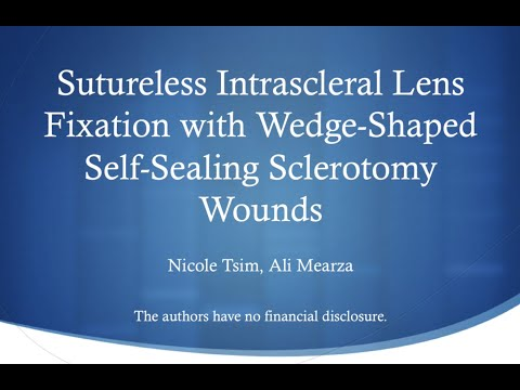 sutureless-intrascleral-lens-fixation